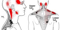 terapia trigger points-2